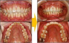 顎関節症:2次治療+補綴までのケース(熊本市在住の患者様)