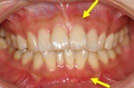 口呼吸によるメラニン色素の沈着