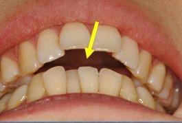 舌の突出による開口