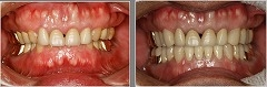 顎関節症:開口障害と夜間の歯ぎしりのケース(八代市在住の患者様)