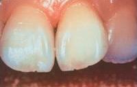 神経を取った歯のホワイトニング